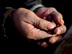 Hands of A homeless man in Calgary on December 13, 2015.