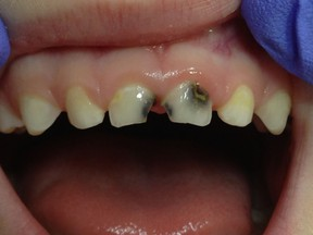 Three Calgary dental specialists say the condition of children's teeth has deteriorated since fluoridation of water stopped in 2011.