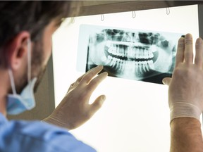 Dental x-ray  Closeup of dentist looking at dental x-ray plate  Model and Property Released (MR&PR) Ridofranz, Getty Images/iStockphoto