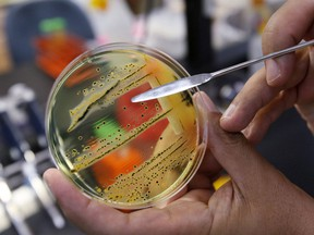 A doctor points out a growth of of salmonella in a petri dish at IEH Laboratories in Lake Forest Park, Wash., in this Monday, May 17, 2010 file photo. Two people have died after testing positive for salmonella during an outbreak of the bacterial infection at a personal care home in Winnipeg.