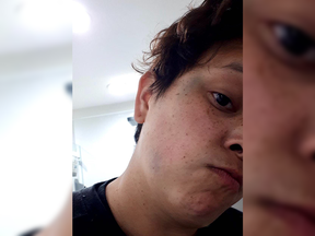 Vancouver police are investigating after an indigenous woman was mistaken for Asian and punched in the head after a man heard her sneeze. Dakota Holmes, 27, is pictured with bruising on her temple and jaw after the May 15 attack.