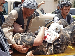 A wounded personnel of National Directorate of Security (NDS) is brought on a stretcher to a hospital after a car bomb exploded in the city of Aybak, in Samangan province on July 13, 2020.