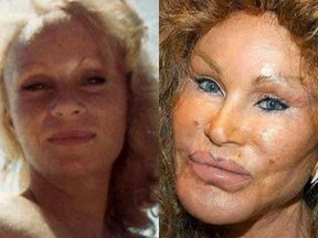 """Jocelyn """"The Bride of"""" Wildenstein. Do not let this happen to you. GETTY IMAGES"""