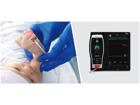 Masimo Root® with SpHb®