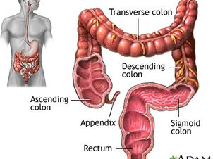 Colorectal Cancer Healthing Ca