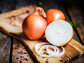 Onions are pictured in a file photo.