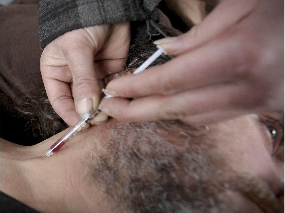 Martin Paré holds his shirt out of the way so fellow drug addict Éric can inject him in the neck with morphine hydrochloride in Viger Square in Montreal Tuesday Nov. 25, 2014.