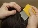 Combing out the lice is a popular alternative to using chemical insecticides.