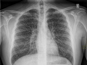 This chest X-ray of a 17-year-old Ontario boy was taken two days after he was hospitalized with a vaping-related lung injury.