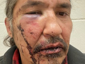 Chief Allan Adam of Athabasca Chipeywan First Nation displays his wounds that he says were caused by Royal Canadian Mounted Police (RCMP) officers of the Wood Buffalo detachment in an incident in Fort McMurray, Alberta, Canada March 10, 2020.