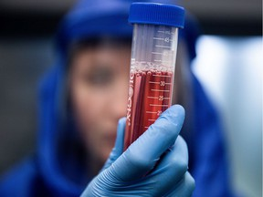 A scientist displays a test sample during diagnostic activity relating to SARS-CoV-2, the virus strain causing the coronavirus disease, at the Szentgothai Research Center, University of Pecs, in Pecs, Hungary.