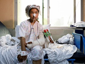 A girl injured by a May 8 car bomb outside a school that claimed 85 victims, mostly Hazara schoolgirls, receives treatment at a hospital in Kabul, Afghanistan, on May 10, 2021.