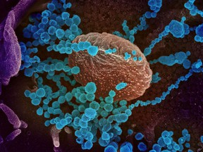 This handout illustration image obtained Feb. 27 courtesy of the National Institutes of Health taken with a scanning electron microscope shows SARS-CoV-2 (round blue objects) emerging from the surface of cells cultured in the lab, SARS-CoV-2, also known as 2019-nCoV, is the virus that causes COVID-19. HANDOUT / NATIONAL INSTITUTES OF HEALTH/AF