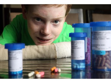 Jonathan's pain threshold is unimaginable for most, but still antibiotics and pain relievers play a daily role in his life. He takes half a dozen pills three times a day along with two doses of methadone just to make the pain tolerable.