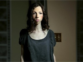 Jenna McRae made a New Year's resolution three years ago to lose weight and within two months had full blown Anorexia Nervosa. She stands at five foot three inches and weighs a skeletal 74 pounds.