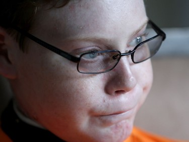 """""""Butterfly Child"""" Jonathan Pitre, 16, will be the first Canadian to undergo a bone-marrow transplant developed in the US to dramatically improve the devastating symptoms of his Epidermolysis Bullosa (EB)."""