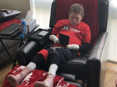 Jonathan Pitre reading on his iPad while back in his apartment on Wednesday.