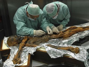 In this November 2010 photo provided by the South Tyrol Museum of Archaeology, researchers examine the body of a frozen hunter known as Oetzi the Iceman to sample his stomach contents in Bolzano, Italy. In a report released on Thursday, July 12, 2018, scientists said the analysis offers a snapshot of what ancient Europeans ate more than five millennia ago.