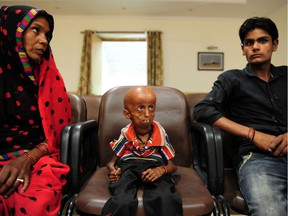 Young Indian progeria sufferer Rupesh (C) sits with his mother Shanti Devi (L) and younger brother Vakil (R) at Allahabad District Magistrates Office in Allahabad on May 2, 2017, as they seek government financial support for his treatment. 21 year old Rupesh who comes from a village on the outskirts of Allahabad suffers from progeria disease, also known as Hutchinson-Gilford progeria syndrome (HGPS), which causes premature aging as a result of a genetic condition it affects some 1 in every 4 million births across the world.