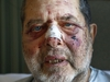 Morty White sits at the Civic Hospital in Ottawa Monday Dec 10, 2018. Morty on Saturday stopped to use an ATM at a bank in Vanier. He was blindsided by a couple of people, possibly in 20s. They didn't take anything. Just left him bloody and battered.   Tony Caldwell