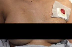A Toronto woman narrowly escaped death when her breast implant deflected a bullet.