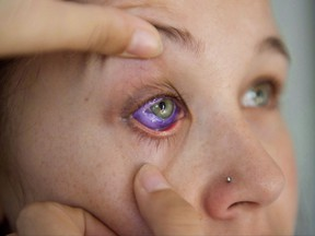 Catt Gallinger, who had a botched ink injection in her eyeball, shows the amount of swelling in her eye, at home in Ottawa on Friday, Sept. 29, 2017.  THE CANADIAN PRESS/Justin Tang
