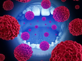 A mouth with malignant disease cells illustrating oral cancer.