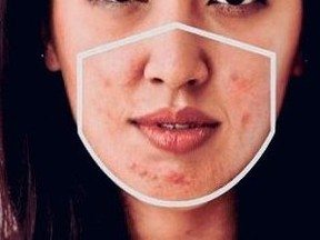 A woman with acne from mask-wearing.