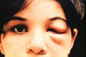 An 8-year-old girl in Brazil with Chagas disease from the kissing bug.