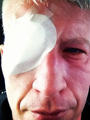 Anderson Cooper was temporarily blinded last week while on assignment. (Instagram Photo)