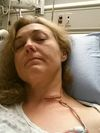 When Beth Jefferson read last week about Kim Schellenberg (shown here) after having surgery after barbecue brush wire got lodged in her throat, it reminded her of her own brush with death. HANDOUT PHOTO/QMI AGENCY