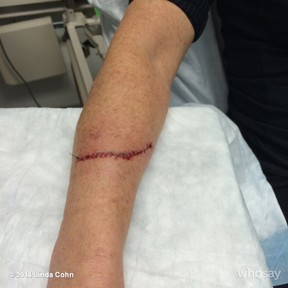 Linda Cohn's arm after the New York arena incident. (Twitter)