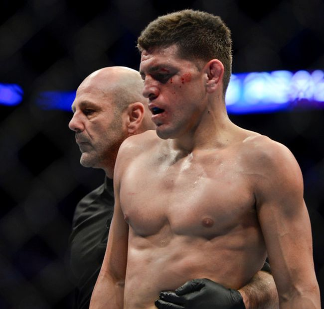 Nick Diaz at UFC 158, which took place at the Bell Centre on March 17, 2013. (MARTIN CHEVALIER/LE JOURNAL DE MONTREAL/QMI AGENCY)