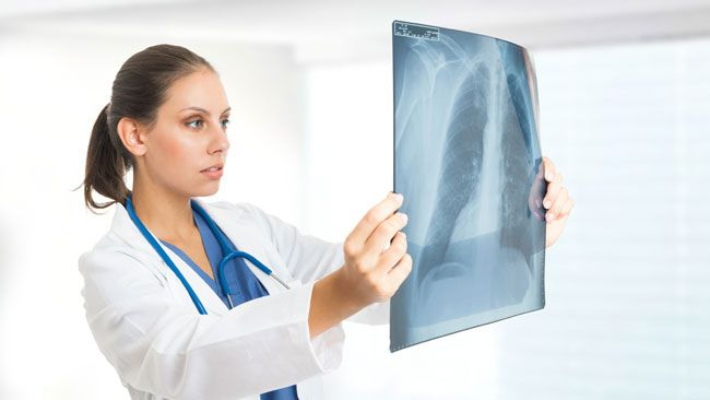 Each day we take about 20,000 breaths. For some people living with poor lung health, each breath can be a struggle.(Fotolia)