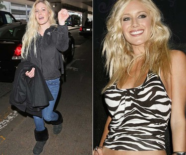 BEFORE AND AFTER: Heidi Montag (WENN.COM)