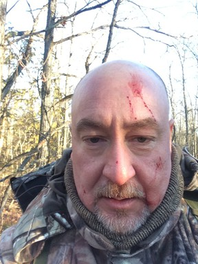 Roberto Giugovaz took this selfie after being attacked by a fisher on his property north of Kingston.