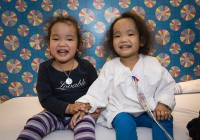 Wagner twins (Phuoc, left and Binh, right) taken April 20 2015. The girls suffer from Alagille syndrome, a genetic disorder that affects vital organs and can be fatal. Courtesy of SickKids