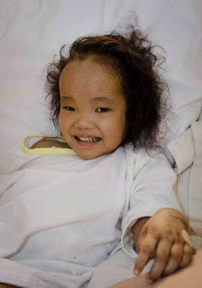 Post-operative photos of Binh Wagner after Living donor liver transplant at Sick Kids Hospital. Binh's  twin sister, Phuoc, went through the same surgery receiving part of her father's liver. The girls suffer from Alagille syndrome, a genetic disorder that affects vital organs and can be fatal. Courtesy of SickKids