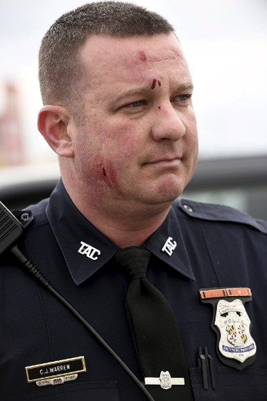 Sergeant C.J. Warren, who said he was hit by a brick during clashes with protesters near Mondawmin Mall after Freddie Gray's funeral, is pictured in Baltimore April 27, 2015. Seven Baltimore police officers were injured on Monday as rioters threw bricks and stones and burned patrol cars in violent protests after the funeral of Gray, a black man who died in police custody.  REUTERS/Sait Serkan Gurbuz