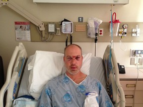 Mike Chapman in his room at Kingston General Hospital. He will undergo reconstructive surgery today for his facial injuries, which he sustained in a baseball game. (Supplied photo)