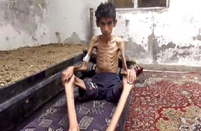 This undated photo posted on the Local Revolutionary Council in Madaya, which has been verified and is consistent with other AP reporting, shows a starving boy in Madaya, Syria. (Local Revolutionary Council in Madaya via AP)
