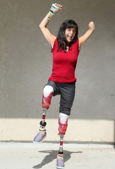 It has been three years since Christine Caron lost three limbs arising from immune complications after a dog-biting incident. Today, the local mother of four is back to doing yoga, has started public speaking and intends on writing a book about her recovery. Her effervescence is infectious and has certainly helped with her recovery.  (JULIE OLIVER)