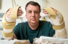 """Chris King, the first person in Britain to receive a double hand transplant, shows his hands at Leeds General Infirmary, Leeds, England, Thursday July 21, 2016. Chris King said Friday he feels """"whole again"""" after the surgery. The 57-year-old lost both his hands except for his thumbs in an industrial accident three years ago. (Danny Lawson/PA via AP)"""