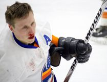 Islanders' forward Eric Delong left late in the third period after taking a stick to the face Thursday night against the Beavers at Stride Place in Portage la Prairie.