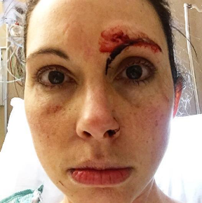 Kelly Herron posted this photo after the attack. (Instagram)
