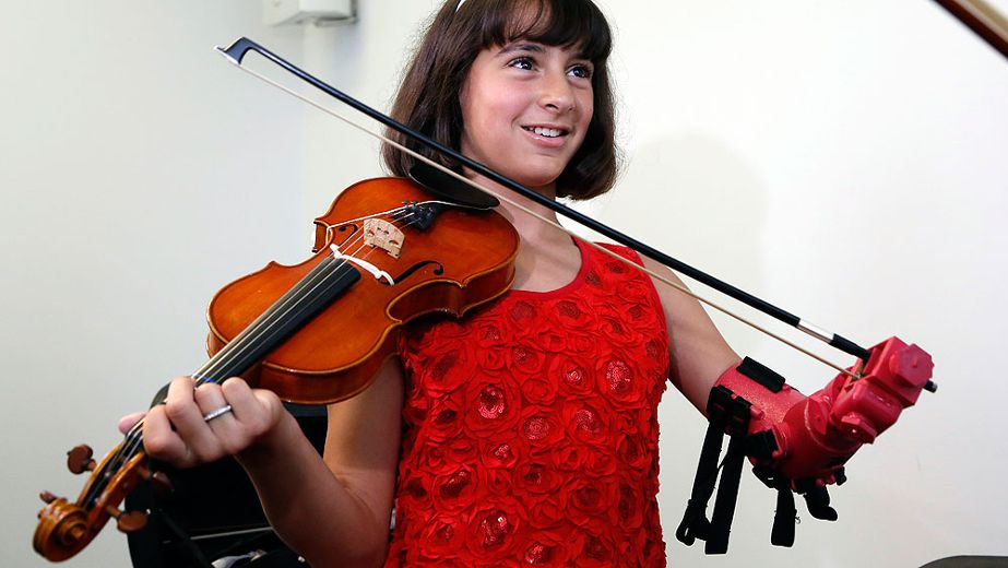 10-year-old girl gets special 3D-printed prosthetic arm to play the violin