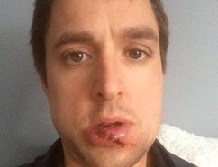 Doug Gardner had major dental surgery after he was struck in the face with a goalie stick 18 months ago in a Dorchester beer league hockey game. The goalie, Jason Ashton, 37, has been sentenced to 90 days of house arrest and two years of probation -- prohibiting him from playing hockey during that time. (SUPPLIED BY DOUG GARDNER)