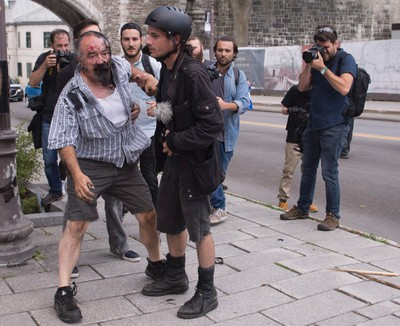 Eric Roy gets help after he was attacked by a group of people during an anti-racism demonstration, in Quebec City on Sunday, Aug. 20, 2017. THE CANADIAN PRESS/Jacques Boissinot