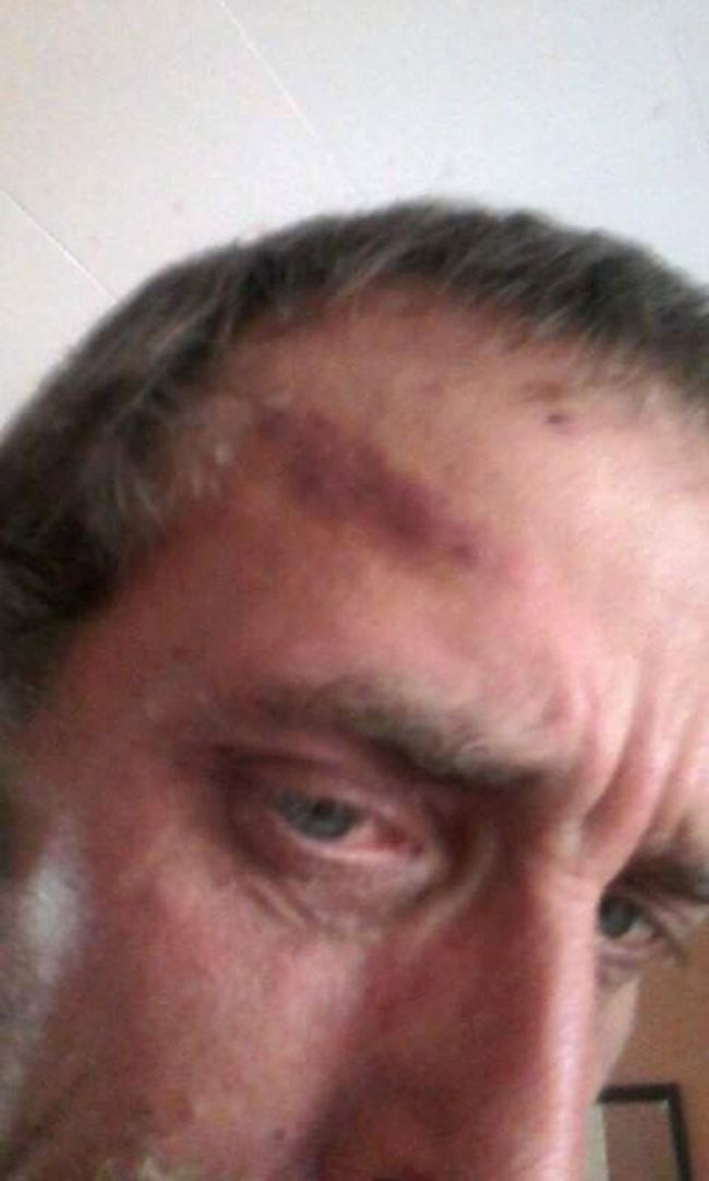 A Newfoundland hunter Rodney Buffett says a five-minute brawl with a moose left him with a hoof print on his forehead. (THE CANADIAN PRESS)