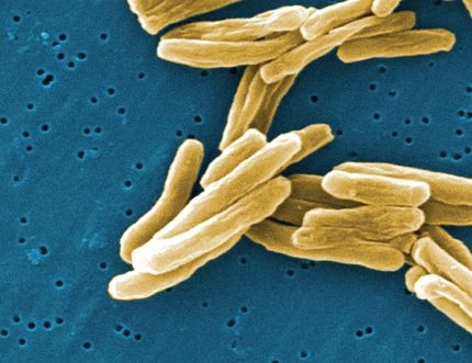 The Mycobacterium tuberculosis (TB) bacteria is shown in a 2006 high magnification scanning electron micrograph image. THE CANADIAN PRESS/Handout/CDC - Janice Carr
